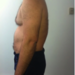 Before-Passive-Extension-Treatment