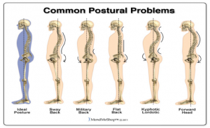 Common-Postural-Problems-Vancouver