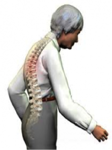 Degenerative-Disc-Disease-Alignment-Vancouver